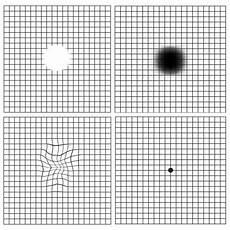 Amd Eye Chart Age Related Macular Degeneration Amd Retina Group Of New