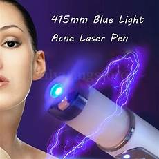 Acne Blue Light At Home Blue Light Therapy Acne Laser Pen Soft Scar Wrinkle