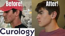 curology before and after test does it work