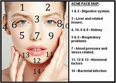 Chinese Acne Face Chart What Chinese Face Mapping Reveals About Your Health