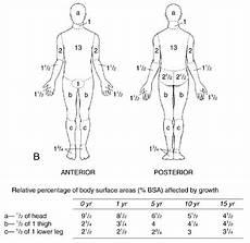 Burn Chart Body Total Body Surface Area Walker Morgan