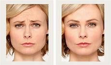 botox cosmetic buena vista aesthetics revive your