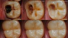Dental Caries Don T Go To The Dentist Cure Dental Caries With These