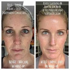 rodan and fields before and after rodan and fields