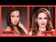 plastic surgery before and after 2017