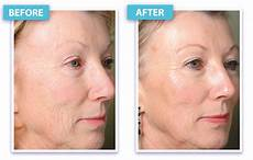 laser skin rejuvenation laser skin tightening bbl