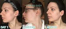 curology review before after photos day 1 2 weeks