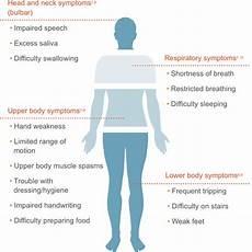 Arm Diagnosis Chart What Is Als Als Symptoms Als Pathways