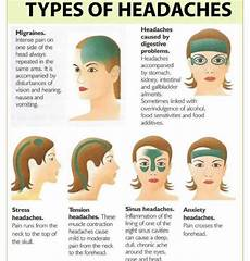 Dehydration Headache Location Chart Headache Diagram 1 Jpg With Images Migraines Remedies