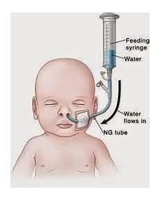 Gavage Feeding Nasogastric Feeding Or Gavage Feeding Nursing Path
