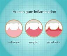 Gum Chart Gum Disease And Dental Implants Jefferson City Mo