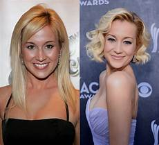plastic surgery 30 before and after photos
