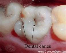 Dental Caries Asif Dental Care Centre Dental Caries