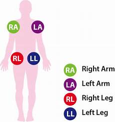 Ecg Placement Chart 12 Lead Ecg Placement Aed Superstore Resource Center