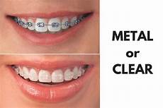 Brackets For Braces Ask Your Fort Worth Dentist Should I Get Metal Or Clear