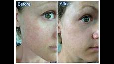 18 tca peel with before after pics