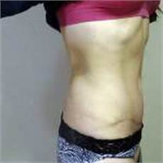 mini tummy tuck pictures before and after 187 tummy tuck