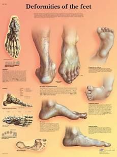 Foot Anatomy Chart Deformities Of The Feet Anatomical Chart Anatomy Poster