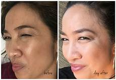 my botox experience before after photos
