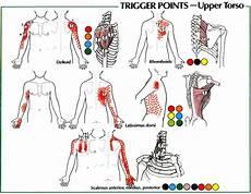 Arm Diagnosis Chart The Cloward Sign Cervical Referral Patterns Trigger