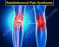 Patella Femoral Syndrome Patellofemoral Syndrome Exercises Physical Therapy