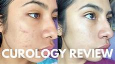 how i cleared my skin curology review
