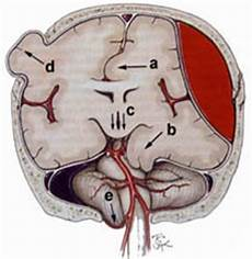 Uncal Herniation Herniation Of The Brain
