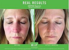 17 best images about rodan fields real results real