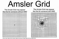 Amd Eye Chart Macular Degeneration Amd February Low Vision