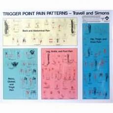 Trigger Point Patterns Chart Poster Set Of 2