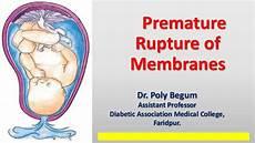 Premature Rupture Of Membranes Prom