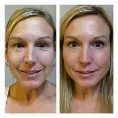 this is an amazing before and after redefine rodan and