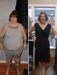 before and after weight loss take shape for