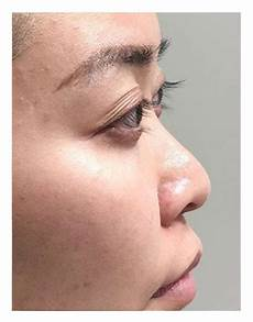 nose fillers get costs before afters and