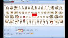 Dental Charting Systems Dental Chart Mp4 Youtube