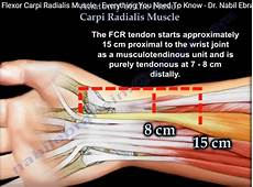 Fcr Tendon Anatomy Of The Flexor Carpi Radialis