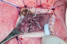 Myelomeningocele Repair Myelomeningocele Repairs Launch The Era Of Fetal Surgery