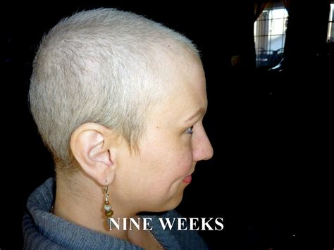 hair growth after chemo pictures anncredible hair growth progression after chemo six
