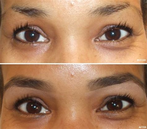 rogaine before and after pictures image gallery minoxidil eyebrows