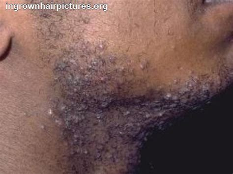 pictures of in grown hair in chin infected ingrown hair photos