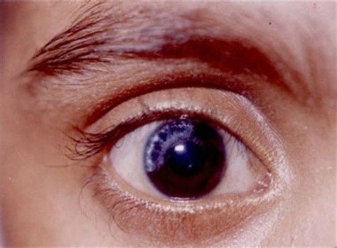 white spot on eye brushfield spots in the right eye seen in the peripheral iris and along the pupillary