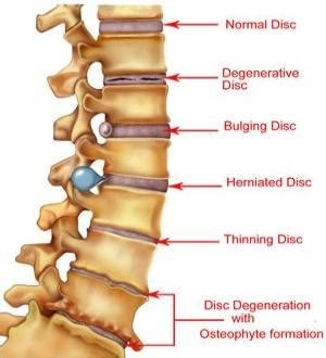 spinal discs diagram may chiropractic spinal degeneration o fallon il