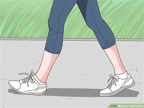 How to Treat a Boil (with Pictures) - wikiHow How To Treat Boils On Buttocks At Home