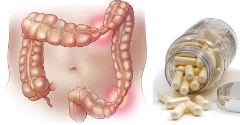 alimenti per intestino infiammato sindrome dell intestino infiammato colite sintomi