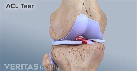 anterior cruciate ligament acl anterior cruciate ligament acl injuries