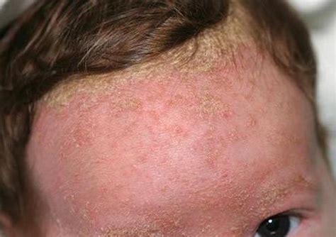 dermatitis seborreica tratamiento cuero cabelludo piel bienvenid al blog de skin cap todo lo que