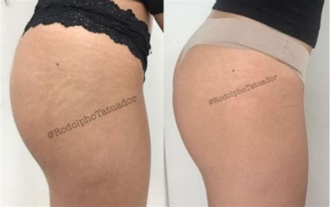 tattoo 3d quanto custa chega de estrias t 233 cnica cobre as marcas brancas com