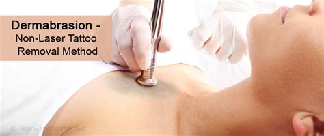 glycolic acid tattoo removal removal methods