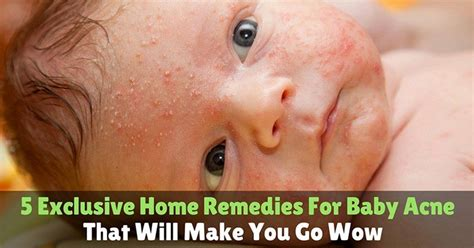 5 exclusive home remedies for baby acne that will make you