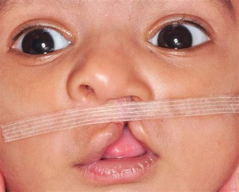 remedy fr cleft chin specialists in braces for adults in mumbai